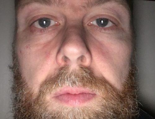 Io e la mia barba